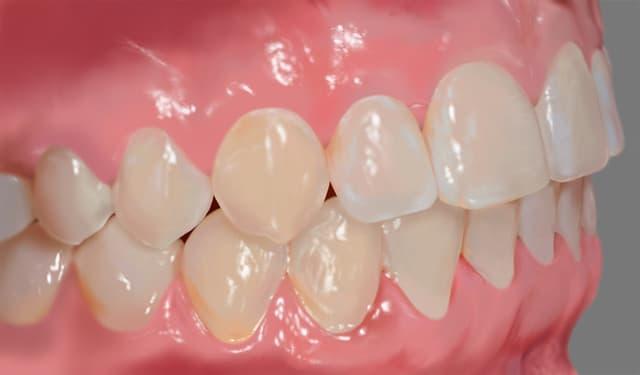 Завершение ортодонтического лечения с самолигирующими брекетами