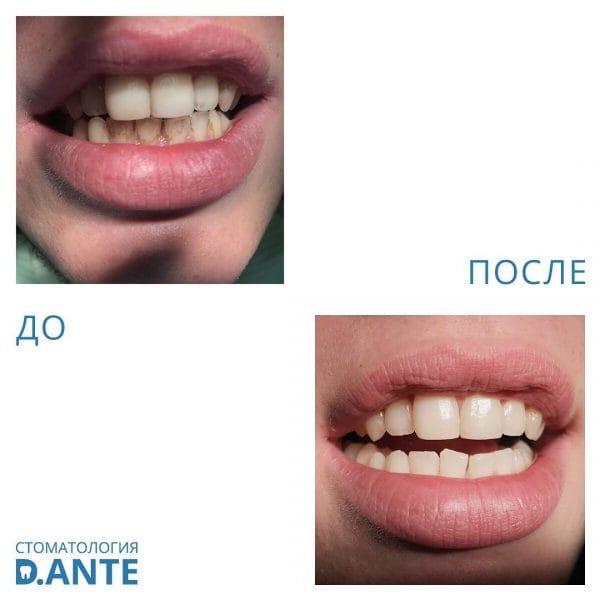 Чистка зубов до и после процедур